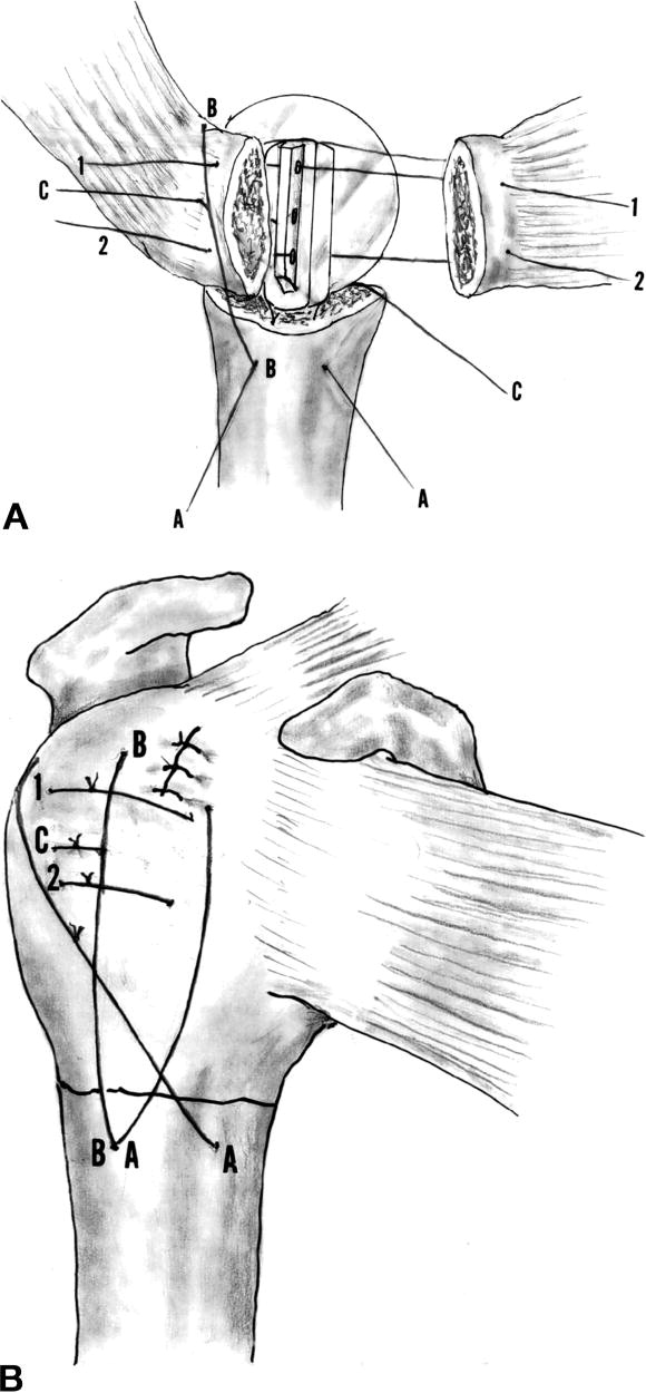 Techniques in managing proximal humeral malunions ...
